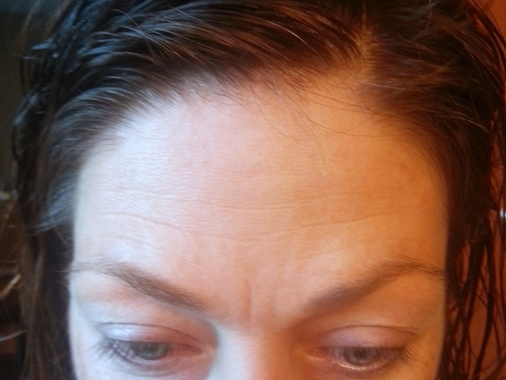 forehead creases - before