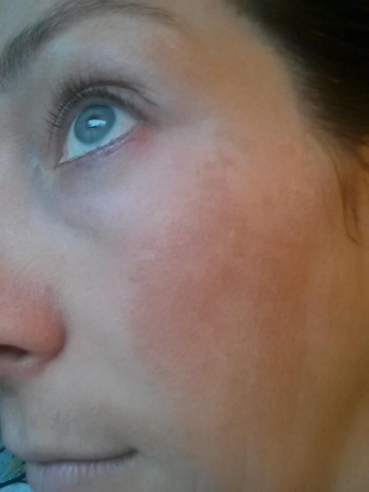 Hyperpigmentation - Left side - Before