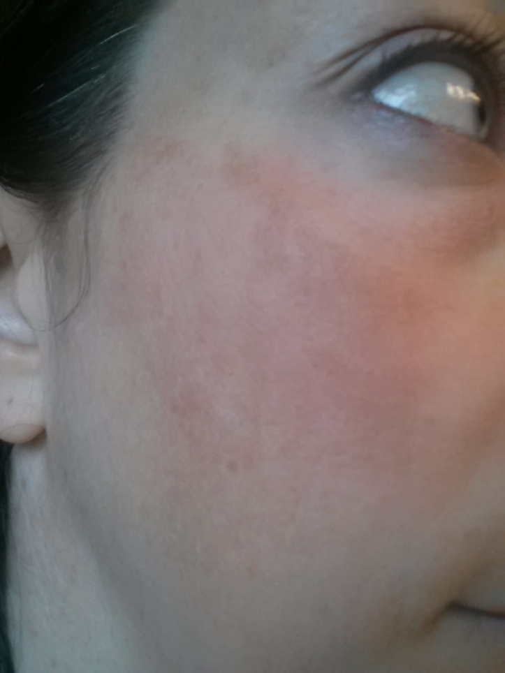 Hyperpigmentation - Right side - Before