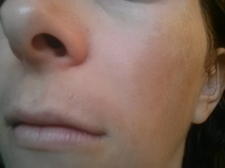 "My ""Skinstache"" - Left side hyperpigmentation - Before"