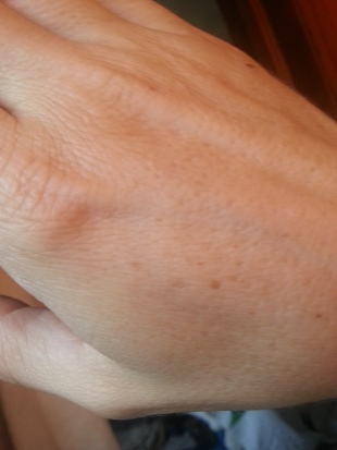 Sun Damage - Right hand - Before