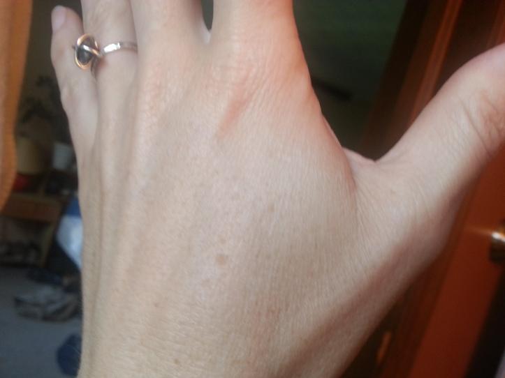 Sun damage - Left hand - Before