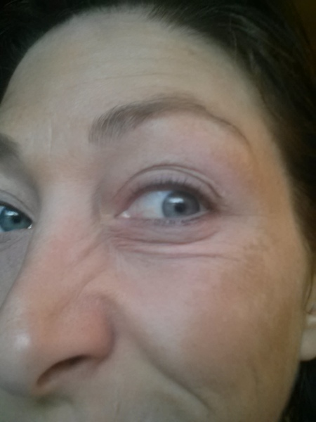 Left undereye fold and nose wrinkles - Before
