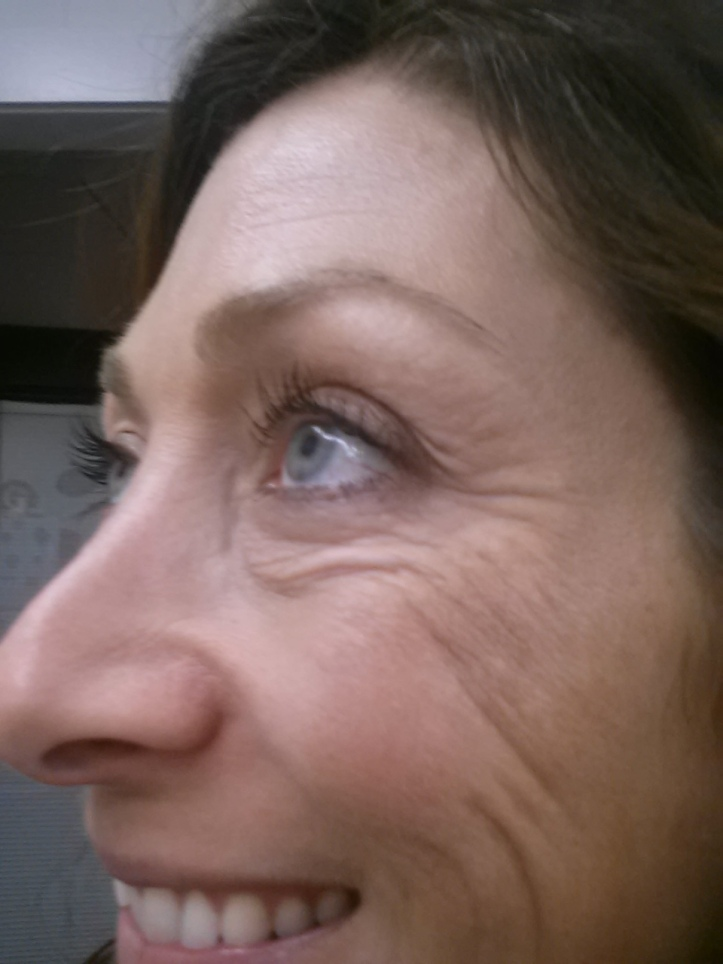 Massive crows feet and cheek wrinkles - Left side - Before