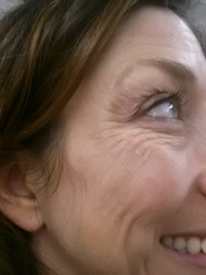 Massive crows feet and cheek wrinkles - Right side - Before